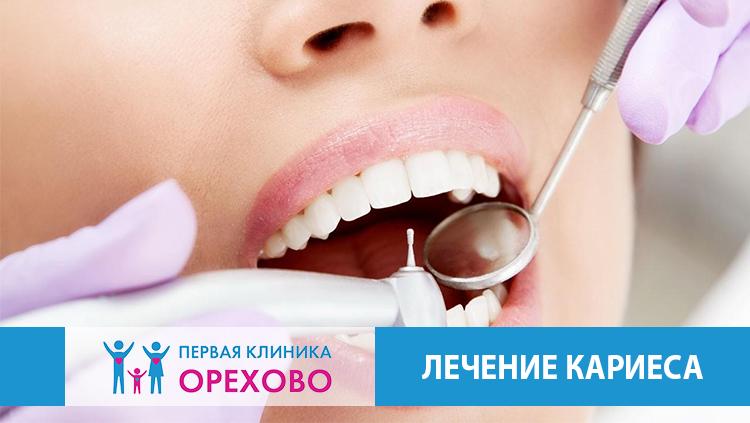 Лечение кариеса в Москве в районе Северное Орехово-Борисово